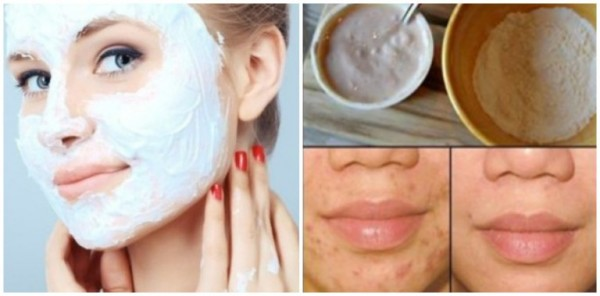 Kết quả hình ảnh cho Remove Stains, Acne Scars And Wrinkles After Second Use Of This Facial Mask