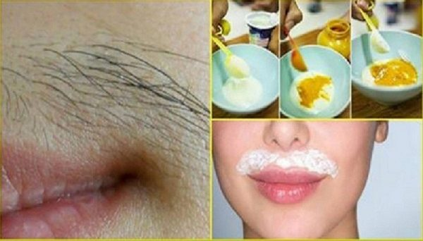 Remove The Mustache And Other Unwanted Hair From The Body Forever!!!