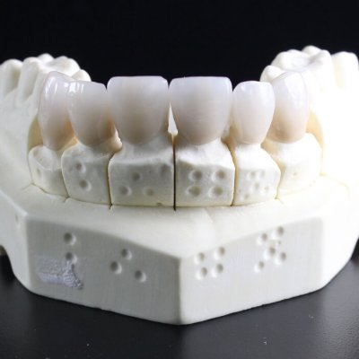 Top Quality Dental Care in Illinois