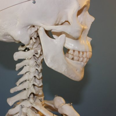 Essential Insights on Temporomandibular Joint Disorder