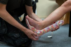 How is a Sprained Ankle Diagnosed?