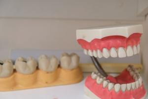 What You Should Know About Periodontics
