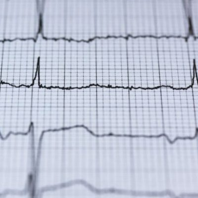 What is a Heart Attack? Warning Signs