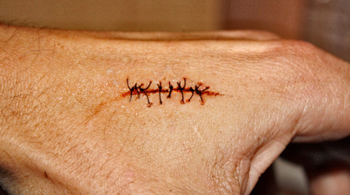 how to - realistic scar with stitches | make: