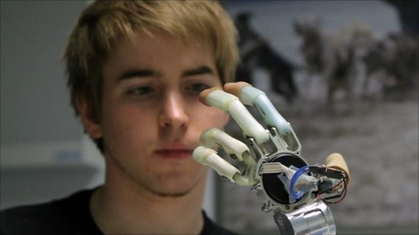 News From The Future – Amputee Demonstrates Bionic Hand