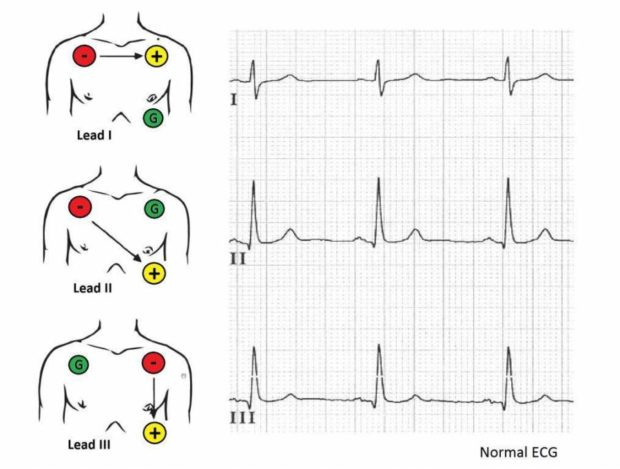 Figure 10: 3 lead ECG placement options - image from the HRW Project