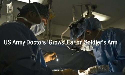 耳の形成外科手術