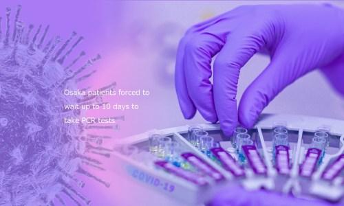 コロナウイルスのイメージ写真