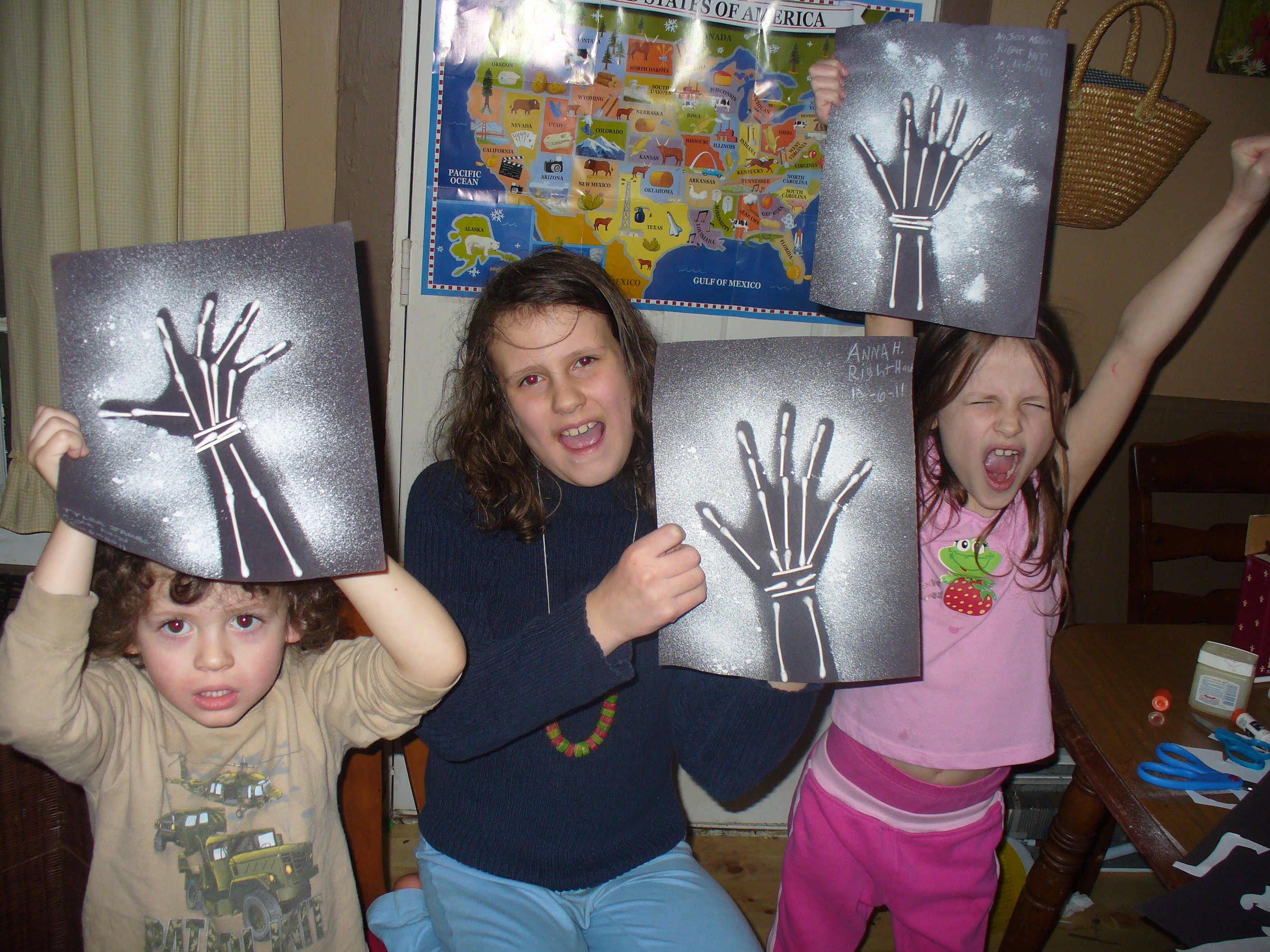 Skeletal System Activities And Crafts