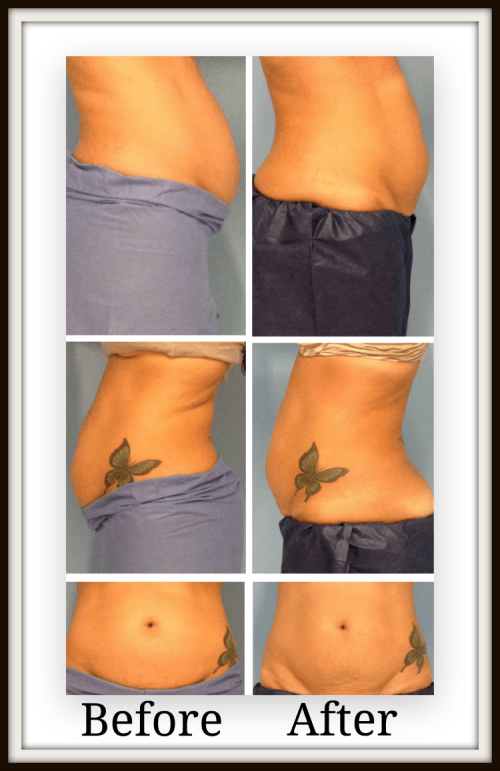 Ultrashape results