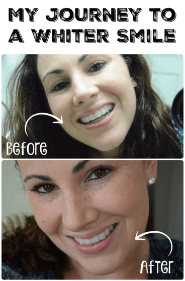 journey to a whiter smile before and after