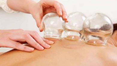 harcamat-kupa-tedavisi