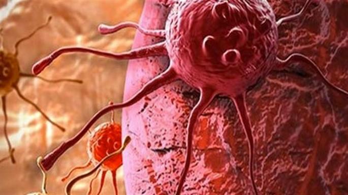 Pankreas Kanseri Nedir? Pankreas Kanserinin Belirtileri Nelerdir?