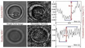 Secondary Speckle Sensing Microscopy (S3M)