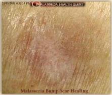Malassezia Bump - Lesion Healing-MQ