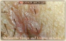 Malassezia Bumps and Lesions on Labia 1G-MQ