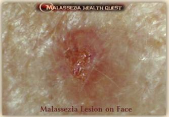 Malassezia Lesion on Face 1-MQ