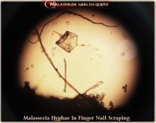 Malassezia in Finger Nail Scrapings2-MQ