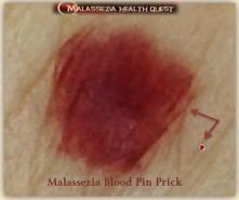 Pin Prick -MQ