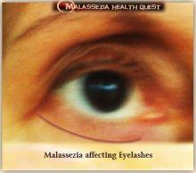 Blepharitis 2-MQ