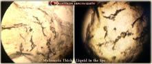 Malassezia Liquid in Eye1-MQ