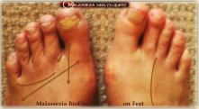 Malassezia on Feet1- MQ