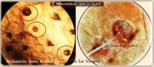 Malassezia Spore Beaded Eyelet 5-MQ