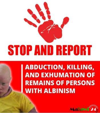 Albinos Malawi