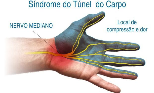 Síndrome do Túnel do Carpo – Dores nas Mãos