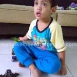 Day 10: Fahmi's Chicken Pox