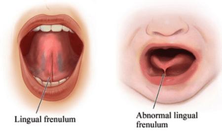crevasses-allaitement-frein-de-langue