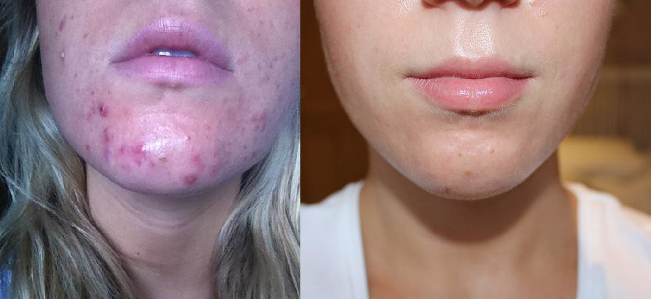 Microdermabrasion for Acne Scars-Before and After Pics