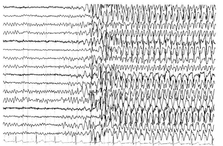 epilepticki napadaj epilepsija