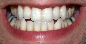 Receta secreta para dejar de tener dientes sensibles