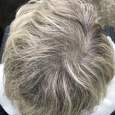 Skjul dit hårtab - Efter02