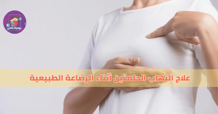 علاج التهاب الحلمتين أثناء الرضاعة الطبيعية يوميات مامي Mamydays