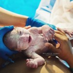 Le vernix caseosa, cette substance qui protège le fœtus et le nourrisson