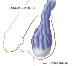 varicoză prevenirea lui yazv