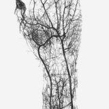 【閲覧注意】ヒト血管画像まとめ