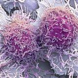 【閲覧注意】世にも美しい癌細胞画像2【ぶつぶつ】