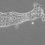 【マニアック】細胞にもリーダーがいる!上皮細胞を培養してみるとリーダー細胞を先頭に動き出す!