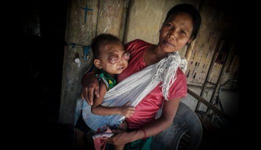 【閲覧注意】眼窩炎性偽腫瘍の男児が寄付によって治療することに成功する