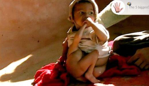 頭のない双子の兄弟の体が癒着してしまっている赤ちゃん