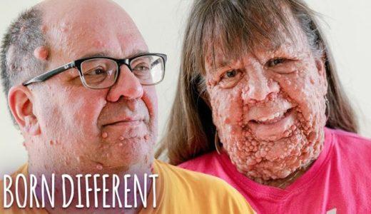 体の90%が腫瘍で覆われている「神経線維腫症」の女性と夫のドキュメンタリー