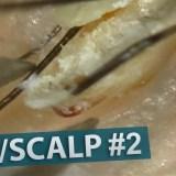 【閲覧注意】頭皮の角栓をピンセットで除去する様子を撮影してみた