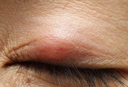 眼瞼術後の霰粒腫