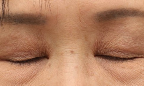 眼瞼下垂術後閉瞼