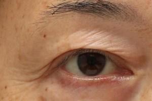 眼瞼下垂症手術後の目尻のふたまたの写真