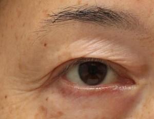 眼瞼下垂手術後の写真。目尻の二股