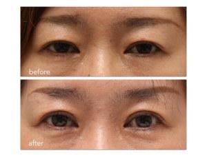 眼瞼下垂症手術。術前術後の写真